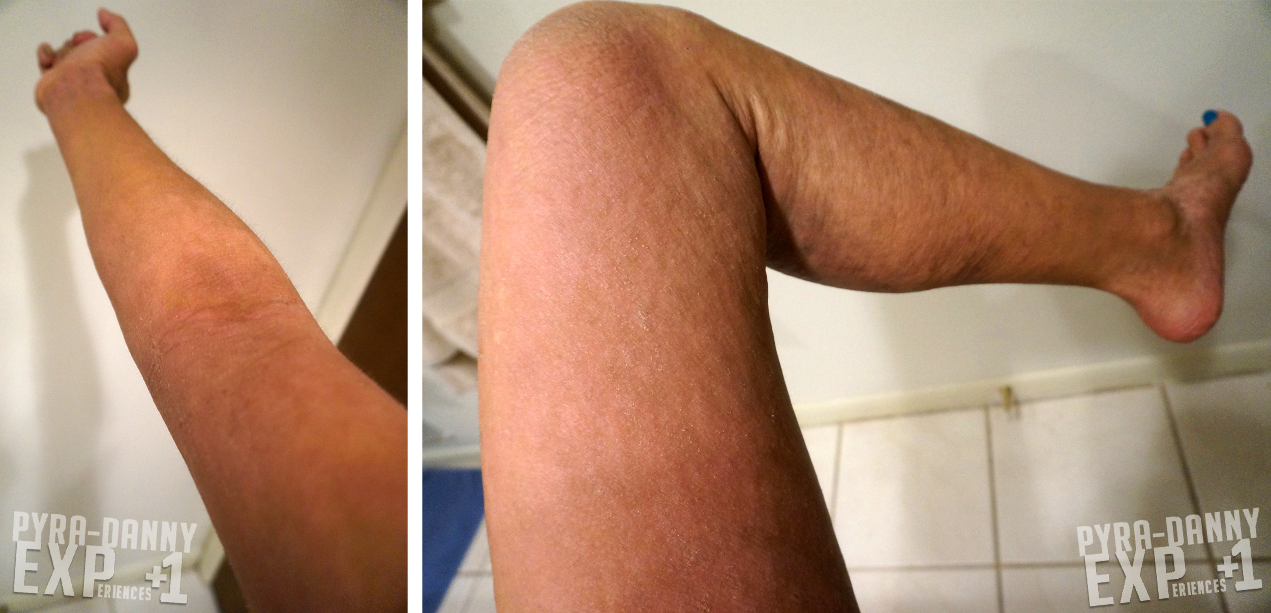 dry skin everywhere
