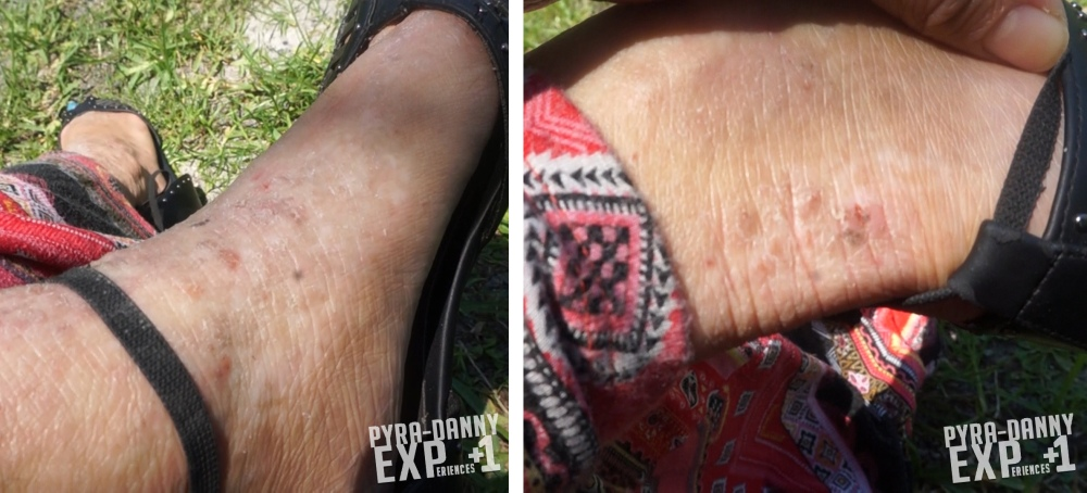 Ankle wounds drying up [EczeMAD 04 Video Status of my Skin | PyraDannyExperiences.com]